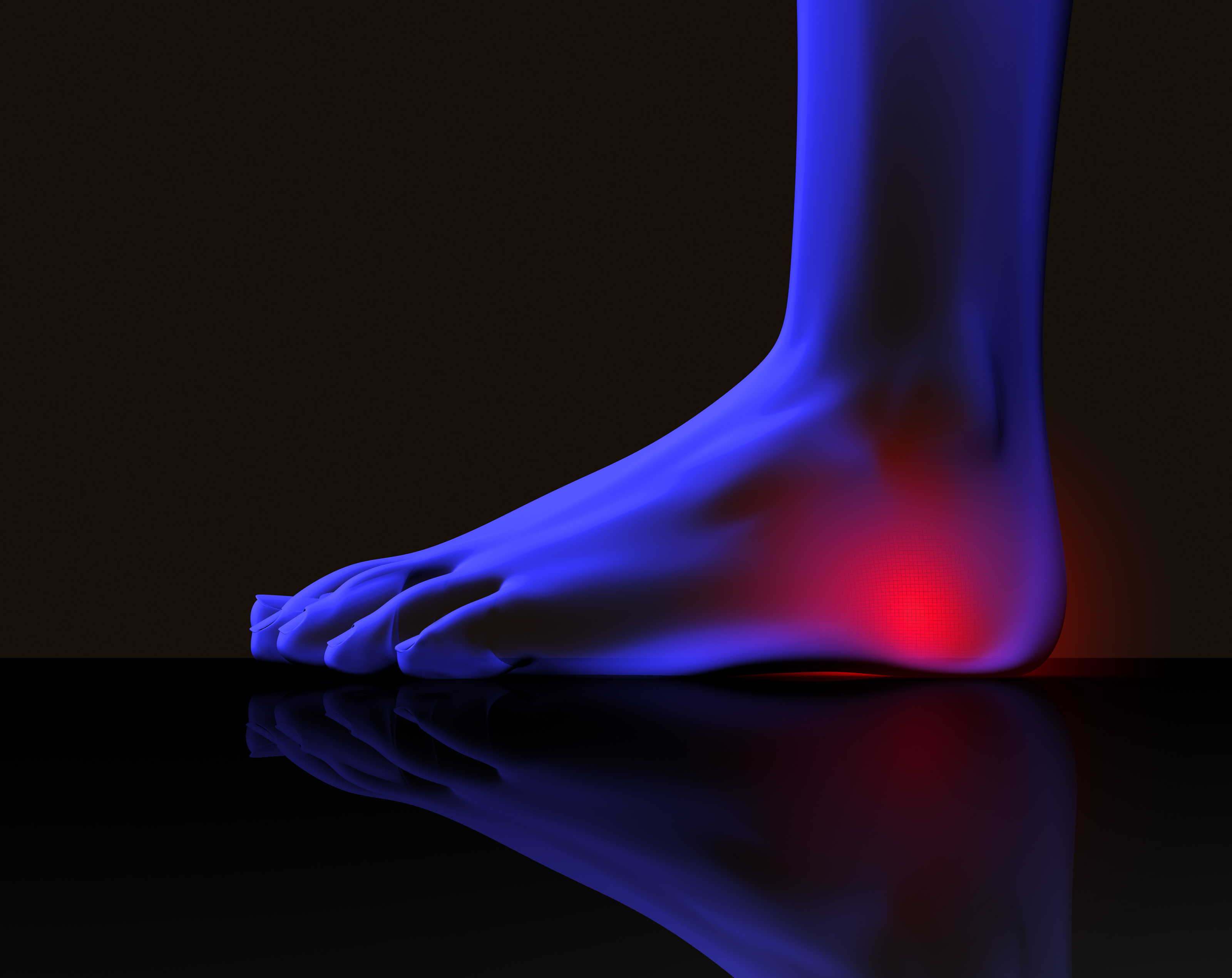The Most Common Causes of Heel Pain